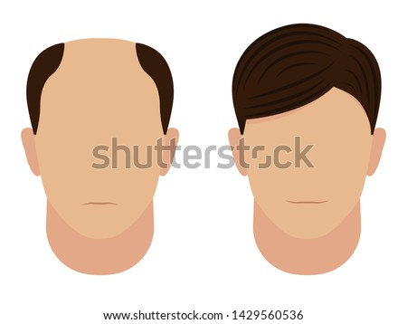 Male baldness before and after. Concept of hair transplantation. Man with a bald head and a beautiful hairstyle wig. Vector illustration isolated on white.