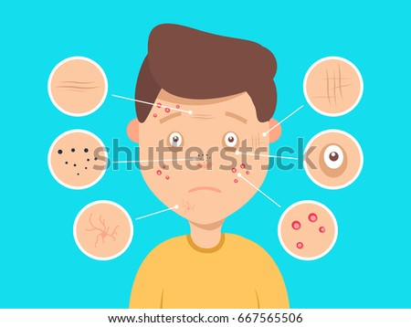 Pimples And Dark Spots Free Vector - Download Free Vector Art, Stock