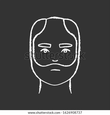 Male hair chalk white icon on black background. Man with alopecia. Hairloss problem. Baldness spot. Dermatology and haircare treatment. Thinning hairline. Isolated vector chalkboard illustration