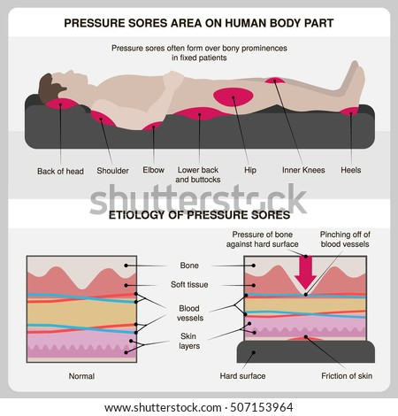 man with pressure sores
