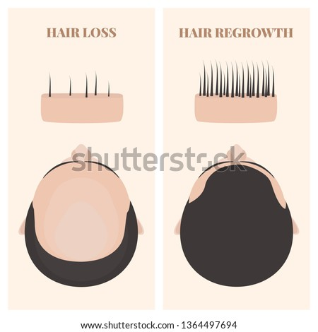 Man with thinning and restored hair in top view. Male pattern alopecia set with skin cross-section diagram. Before and after concept. Vector illustration.