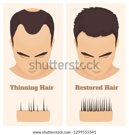 Man with thinning and restored hair. Male pattern alopecia set with skin cross-section diagram. Before and after concept. Vector illustration.