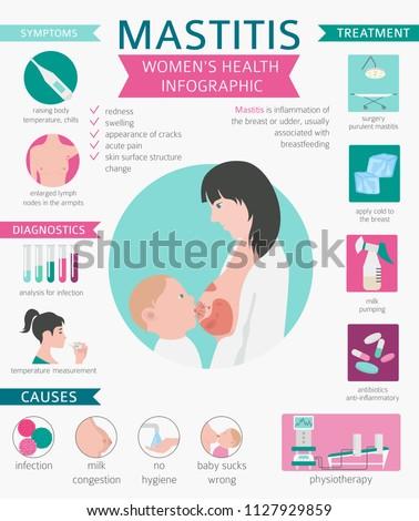 Mastitis, breastfeed, medical infographic. Diagnostics, symptoms, treatment. Women`s health icon set. Vector illustration