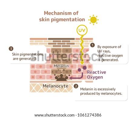 mechanism of skin pigmentation / skin spot illustration (with explanation )