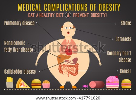 Medical complications of obesity. Editable vector illustration in pastel colors on a dark gray background. Statistic information. Medical poster, leaflet or other landscape layout template. ストックフォト ©