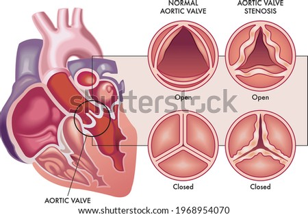Medical illustration shows the difference between a normal aortic valve and one with stenosis, open and closed, and its location in the heart, with annotations. Stock photo ©