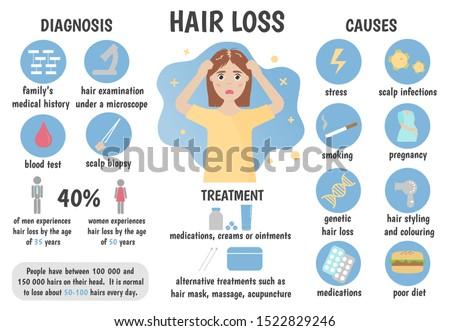 Medical infographics hair loss, alopecia, baldness. Causes, diagnosis, treatment, statistics. Vector illustration.