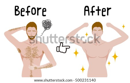 men's hair removal before after concept, unwanted hair, superfluous hair, vector illustration