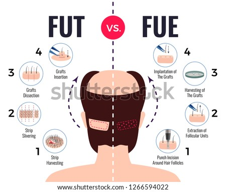 Methods of hair transplantation fut vs fue poster with infographic elements on white background vector illustration Stock fotó ©