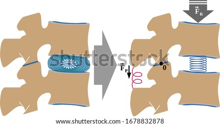 Mobile segment-vertebral functional unit. Its a first-class lever that is formed by: two adjacent vertebrae, the intervertebral disc,  the ligamentous apparatus and the zygapophysial joint (or facet j Zdjęcia stock ©