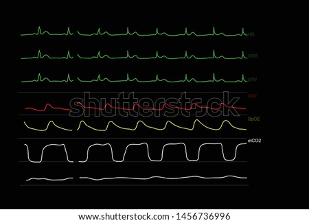 Monitoring graph displays of patient vital signs of anesthesiology in operating room. Vector illustration