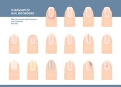 Most Common Nail Disorders and Diseases. Big set. Vector illustration