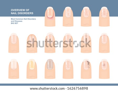 Most Common Nail Disorders and Diseases. Big set. Vector illustration Photo stock ©