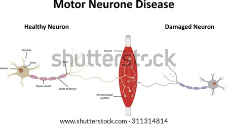 Motor neurone disease stock vector illustration 311314814 for What is motor neurone disease symptoms