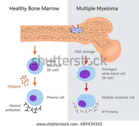 Multiple Myeloma Diagram. Vector illustration design