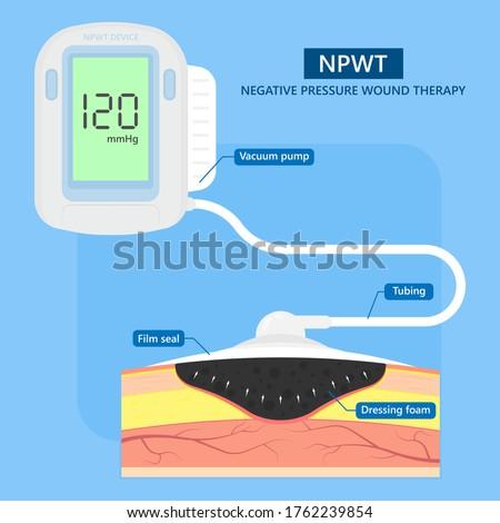 Negative pressure wound therapy NPWT leg bed VAC deep vein care Foot skin burn heal pump Foto d'archivio ©
