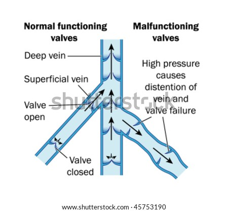Normal and malfunctioning vein valves labeled stock vector