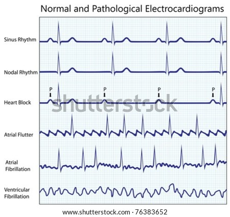 Normal and pathological ecg collection
