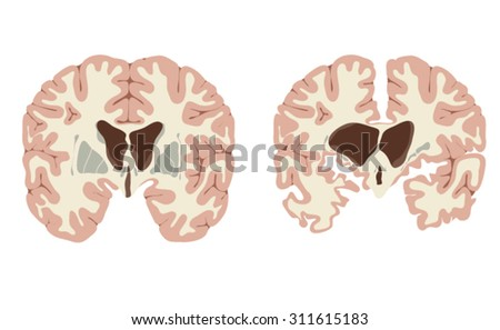 Normal brain and brain with Huntington's disease, showing enlarged ventricles and atrophy of nerve tissue and basal ganglia