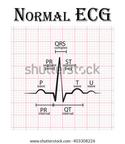 Normal ECG (Electrocardiogram) (P wave , PR segment , PR interval , QRS complex , QT interval , ST segment , T wave , U wave) Photo stock ©