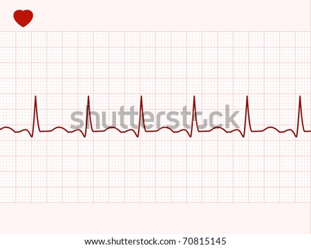 Normal electronic cardiogram. EPS 8 vector file included