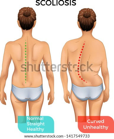 Normal healthy spine and curved spine with scoliosis