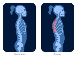 Normal spine and kyphosis in girl body. XRay flat vector illustration. Backbone and skeleton anatomy in child silhouette. Orthopedic poster. Medical banner for clinic. Exam in spinal pain center