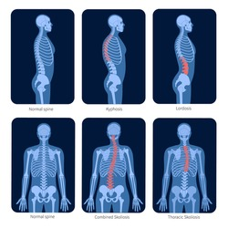 Normal spine and types of spine defects. Scoliosis in human body. XRay flat vector illustration. Backbone and skeleton anatomy in man silhouette. Orthopedic poster. Medical exam in spinal pain center