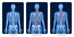 Normal spine and types of spine defects. Scoliosis in human body. XRay flat vector illustration. Backbone, skeleton anatomy in male silhouette. Orthopedic poster. Medical exam in spinal pain center
