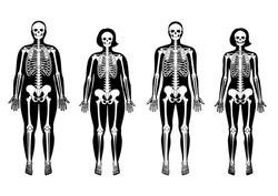 Obese and thin woman and man skeleton anatomy in front view. Vector isolated flat illustration of fat human skull and bones in body. Halloween, medical, educational or science banner