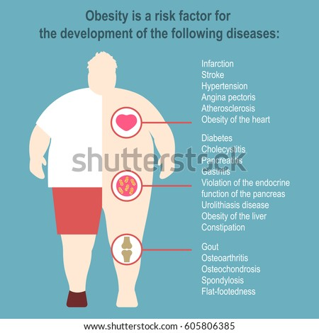 obesity vector illustration