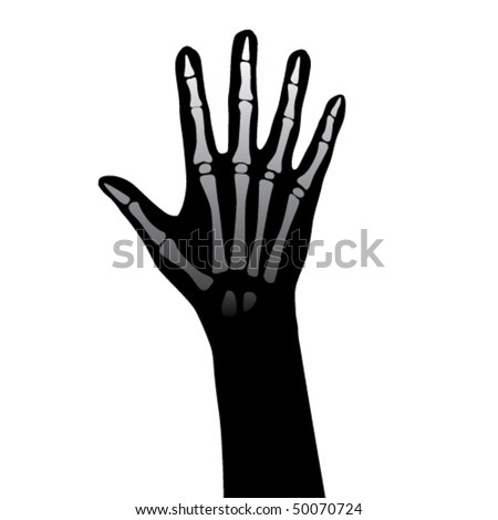 Open hand anatomy illustration.