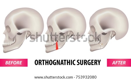 orthognathic surgery vector