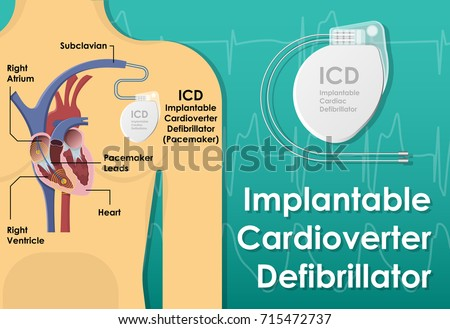 Pacemaker ICD Implantable Cardioverte Defibrillator Pulse Generator Stimulate of Heart Prevent Bradycardia Electronic Medical Device