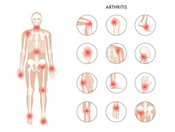 Pain in human body. Male skeleton silhouette. Spine, knee and other joint icons. Arthritis, inflammation, fracture, bone structure and cartilage concept. Medical poster. Flat xray vector illustration