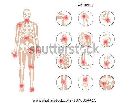 Pain in human body. Male skeleton silhouette. Spine, knee and other joint icons. Arthritis, inflammation, fracture, bone structure and cartilage concept. Medical poster. Flat xray vector illustration Сток-фото ©