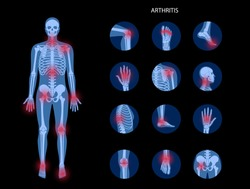 Pain in male human body. Man skeleton silhouette. Spine, knee, other joint icons. Arthritis, inflammation, fracture, bone structure and cartilage concept. Medical poster. Flat xray vector illustration