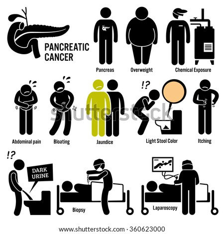 pancreatic pancreas cancer