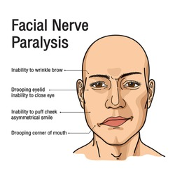 Paralysis of the facial nerve. Bell's palsy. Vector