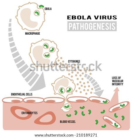 Pathogenesis of ebola virus vector image