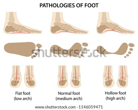 Pathologies of foot. Difference between sick and healthy feet. Vector illustration