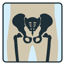 Pelvis bone. Roentgen human body image xray concept icon isolated on white, flat vector illustration. Skeleton part of human organism, silhouette black biological science.