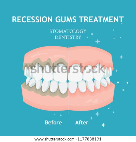Periodontitis vector. Recession gums treatment. Stomatology dentistry concept