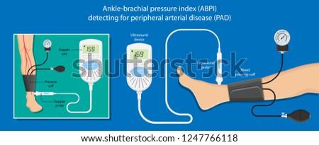 Peripheral artery disease ankle-brachial index (ABI) diagnosis vascular doppler