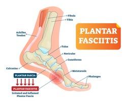 Plantar fasciitis vector illustration. Labeled human feet sport disorder diagram. Educational medical scheme with orthopedic leg disease. Painful plantar fascia inflammation and irritation infographic