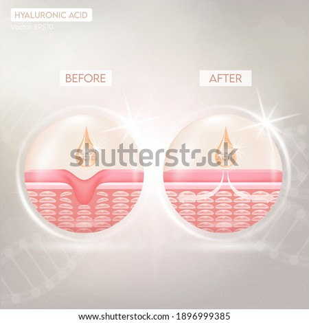 Process of getting skin younger with help of hyaluronic acid before and after skin solutions ad, orange collagen serum drop with cosmetic advertising background. Vector EPS10 Photo stock ©