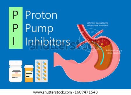 Proton pump inhibitors drugs medication for treatment stomach acid Gastroesophageal reflux disease (GERD)