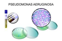 Pseudomonas aeruginosa. bacterial inoculation