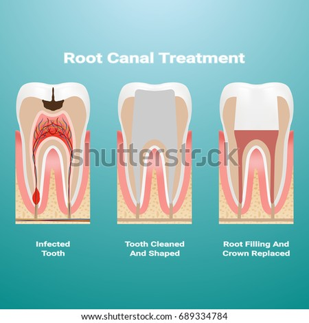 Shutterstock Pulpitis. Root Canal Therapy. Infected Pulp Is Removed From The Tooth And The Space Occupied By It Is Cleaned And Filled With A Gutta Percha Isolated On A Background. Vector Illustration. Stomatology