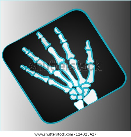 Radiography with black background.